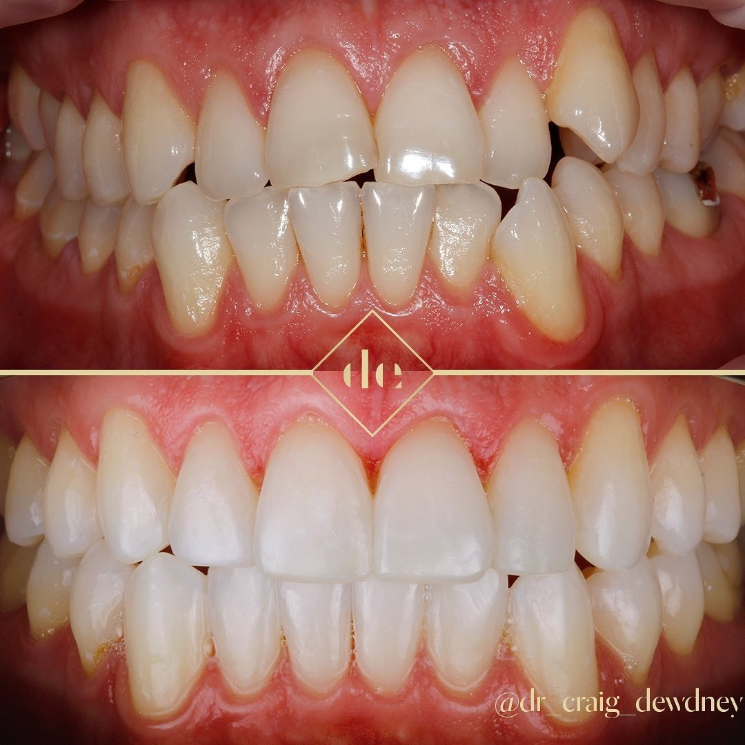 cosmetic or fixed braces before and after teeth